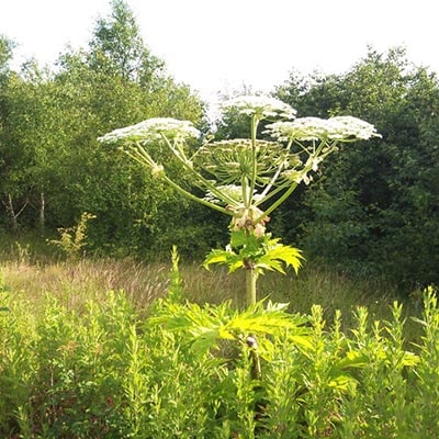 Giant Hogweed - another cause of Phytophotodermatitis